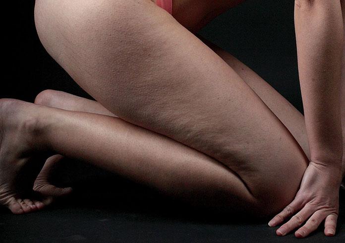 Czym jest cellulit i jak z nim walczyć?