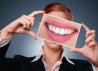 Myślisz o aparacie na zęby? Przeczytaj!