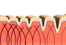 Terapia kolagenowa