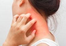 Co stosować na atopowe zapalenie skóry?