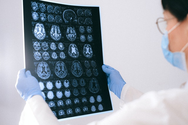 tętniak mózgu
