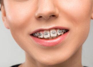 Aparat ortodontyczny stały - 4 rzeczy, które warto wiedzieć